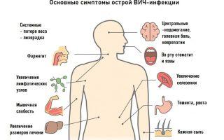 Статья 11. Последствия выявления ВИЧ-инфекции